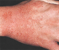 Мази для лечения микробной экземы на ногах
