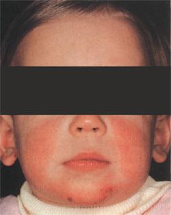 Как диагностировать атопический дерматит у ребенка