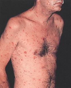 Сифилис  описание причины диагностика лечение