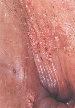 от молочницы появляются язвочки на половых органах