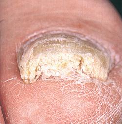 Флуконазол инструкция по применению лечения грибка ногтей