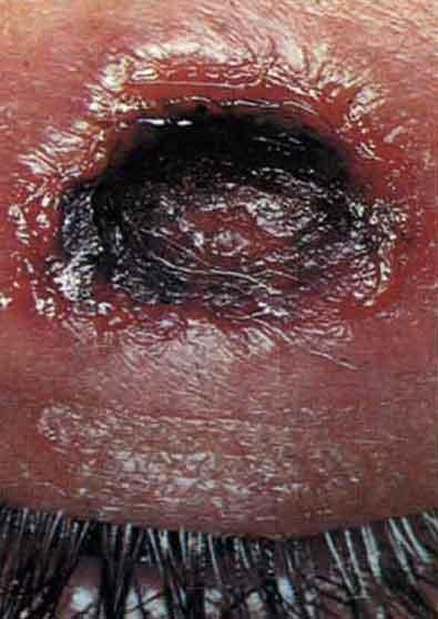 Сифилис Симптомы и лечение сифилиса у женщин и мужчин Сифилитический шанкр