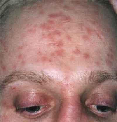 сыпь на лице при сифилисе
