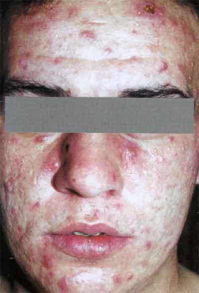 угревидная сыпь при сифилисе