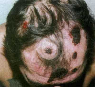 импетиго при сифилисе