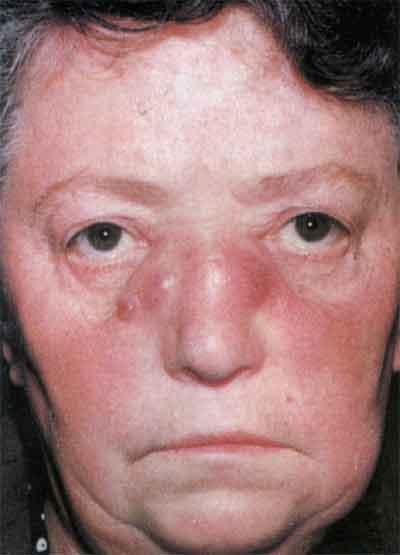 отек лица при сифилисе